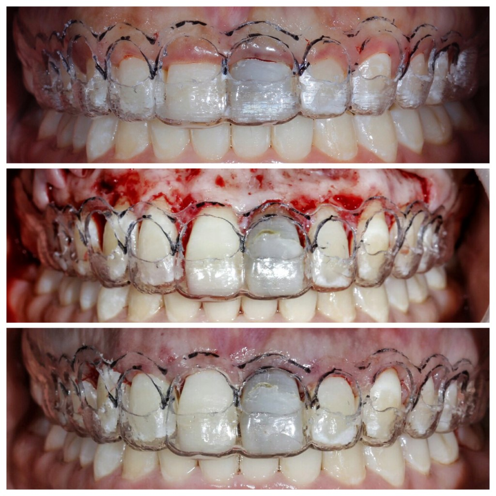 If necessary a double crown lengthening guide and procedure utilizing the digitally designed bone and soft tissue remodeling. – Denti-Pro Blog