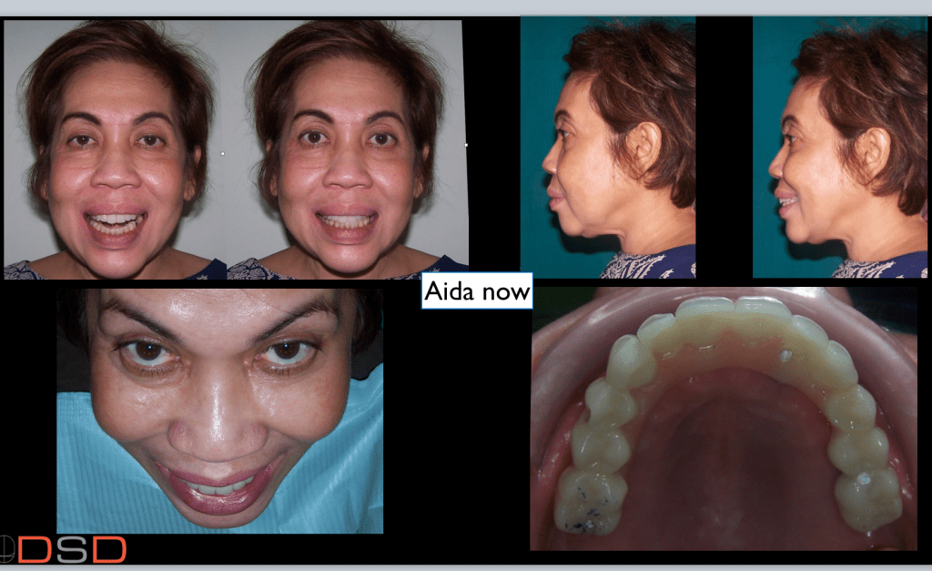 As prosthodontist I need to plan the situation with the end prosthesis in mind.