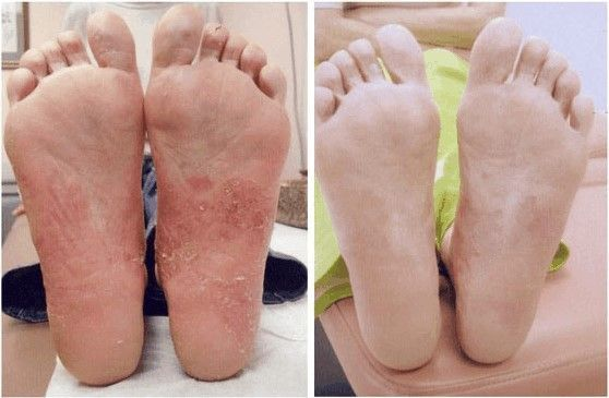 Psoriasis Treatment in Dubai – Dr Kayle Aesthetic Clinic
