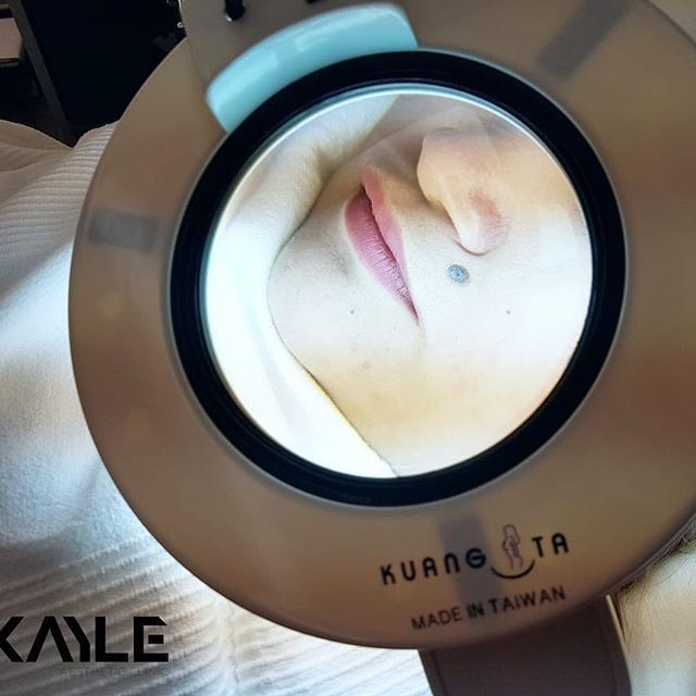 Mole Mapping and Removal – Dr Kayle Aesthetic Clinic, Dubai