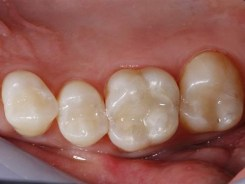 Escondido Holistic Dentist Dr. Kerbs - Amalgam Removal - Replacement with Composite Fillings
