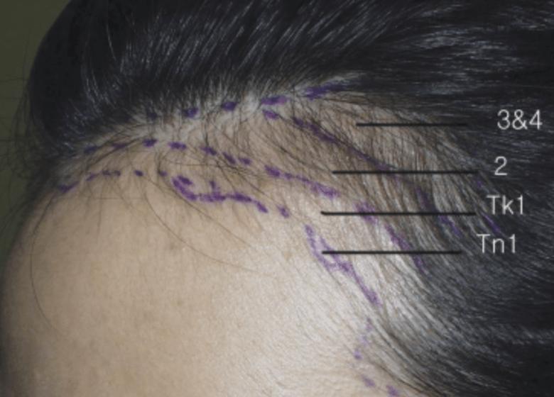 植髮際線 女性髮線種植