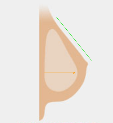 anaotmical-implant