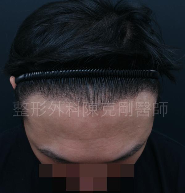 植髮術前1.png