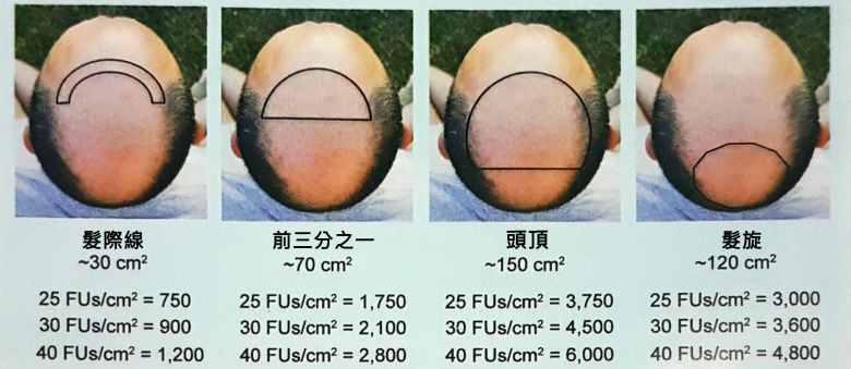 植髮不同區域面積以及種植密度的估計值
