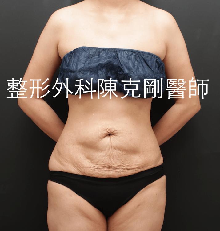腹部拉皮術前正面.png