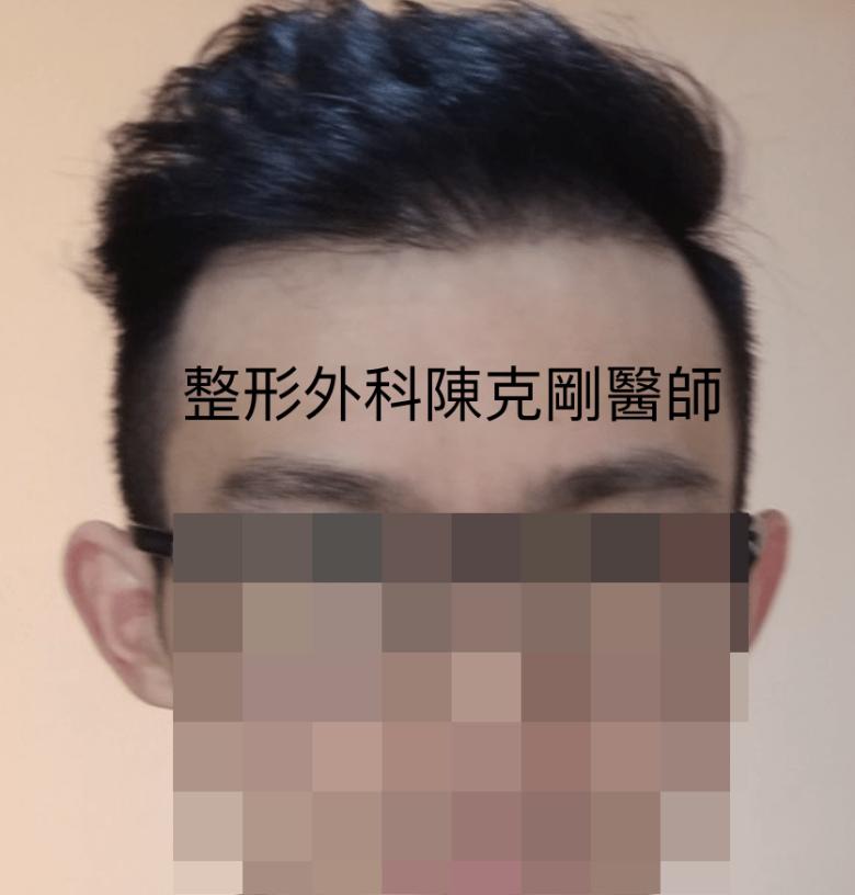 植髮油頭十個月術後.png