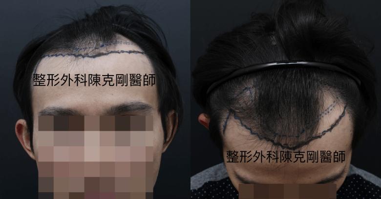 植髮油頭設計正面低頭-side.png