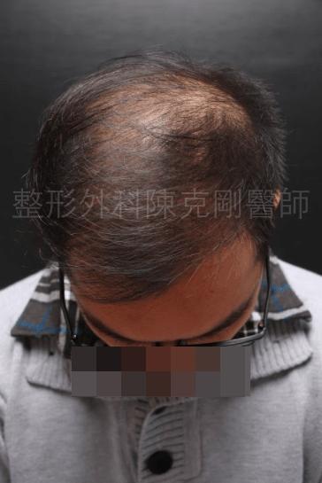 植髮頭頂稀疏1500株術後半年.png