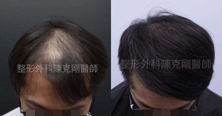 植髮頭頂稀疏低頭比較.png