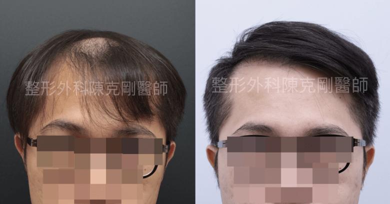植髮頭頂稀疏比較.png