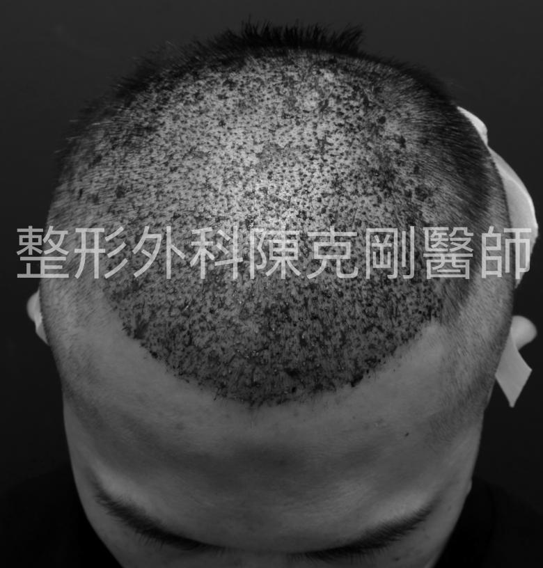 植髮頭頂稀疏術後立即.png
