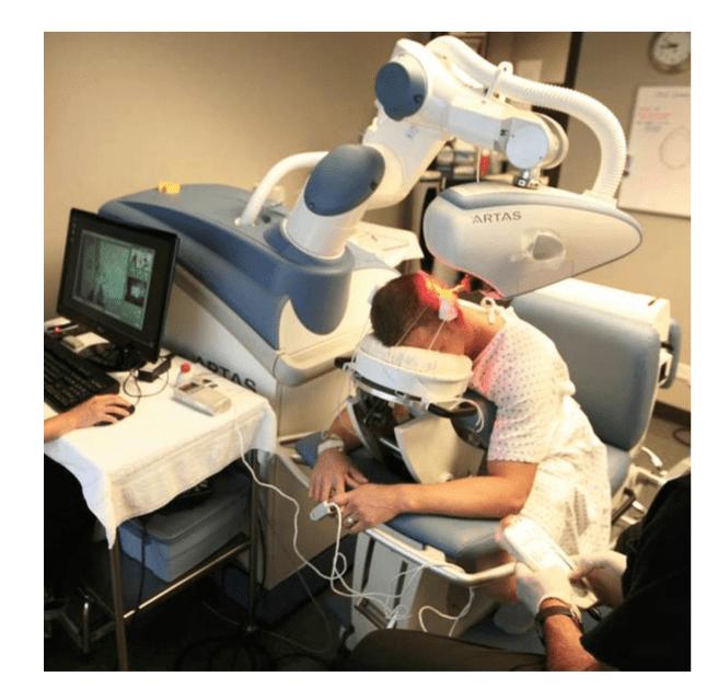 ARTAS植髮機器人