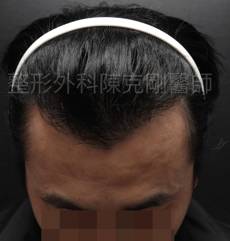 防止植髮失敗 M型六月