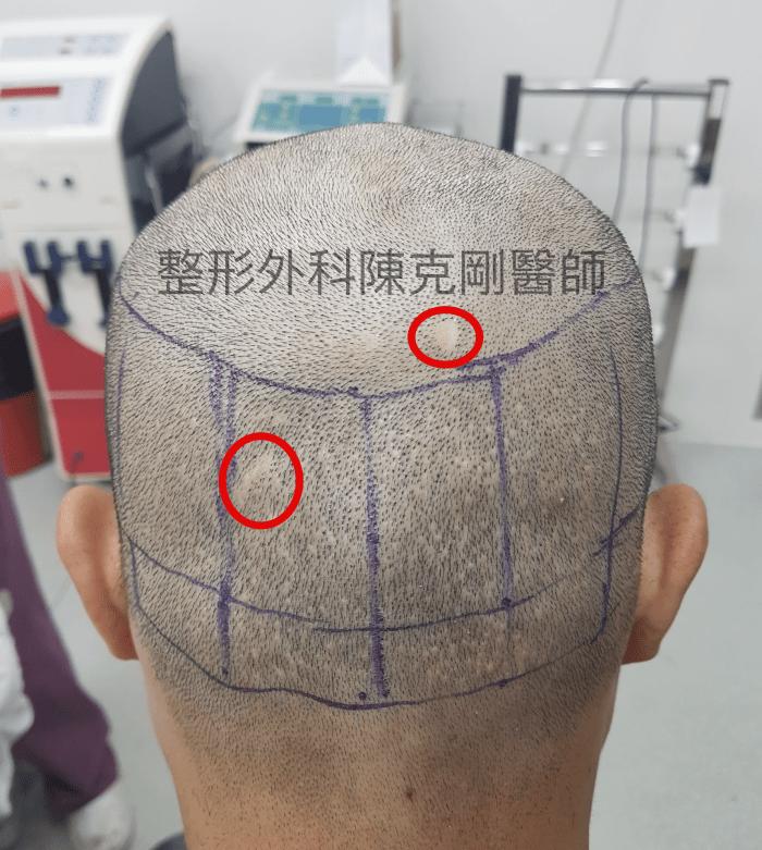 FUE取髮疤痕