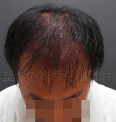 二次植髮術後低頭.png