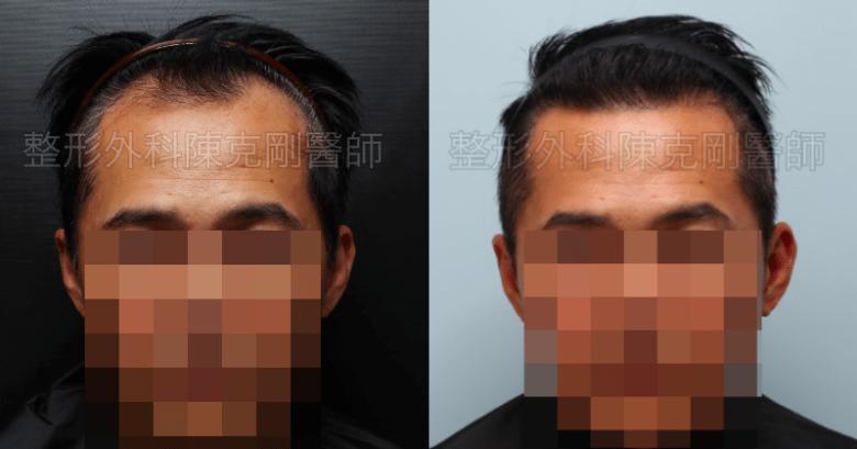 植髮油頭術前正面比較.png