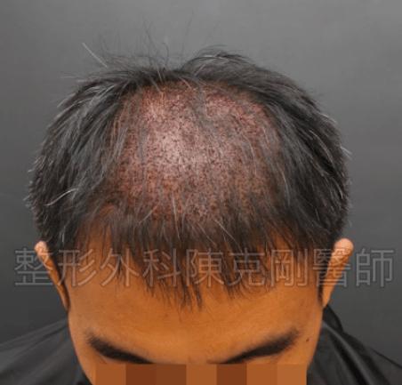 植髮頭頂低頭立即術後.png