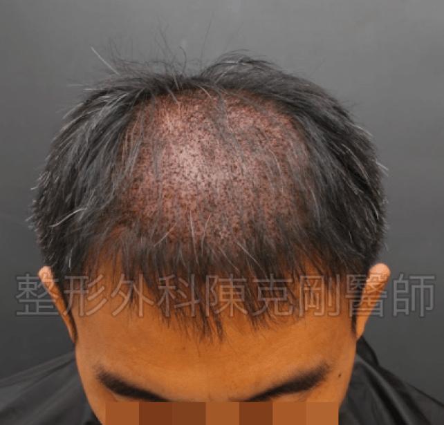 植髮頭頂低頭立即術後