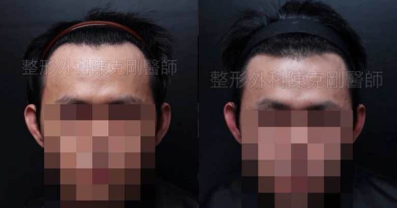 植髮髮線前推正面術前比較