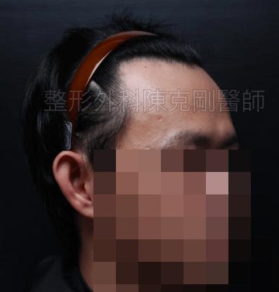 植髮髮線推前右45度術前.png