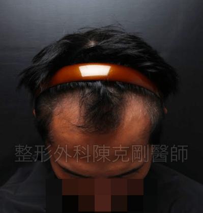 油頭植髮低頭術前.png