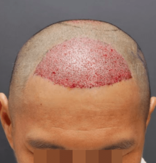 前額植髮立即術後