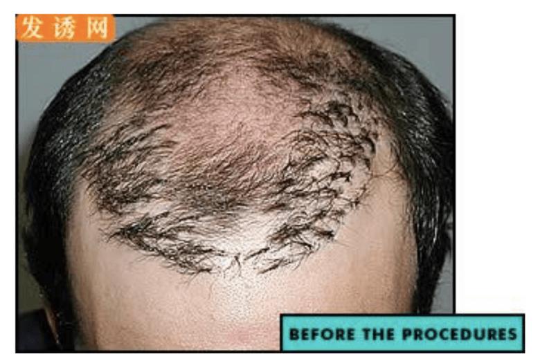 植髮失敗假圖.png