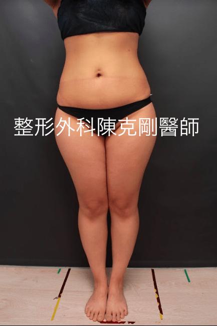 大腿內外側抽脂 正面術前.png