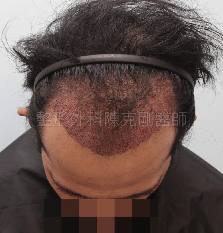 前額植髮術後立即