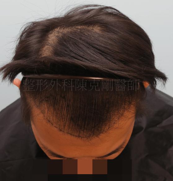 植髮效果 低頭畫線