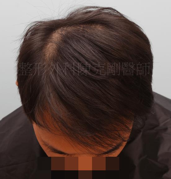 植髮效果 低頭術前
