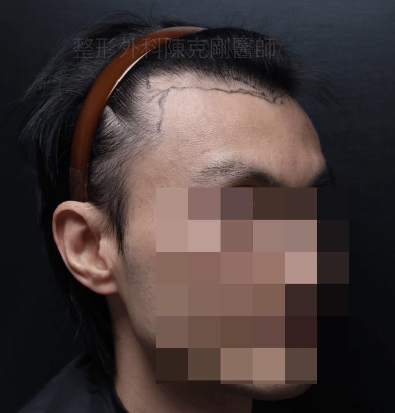植髮際線右45度劃線