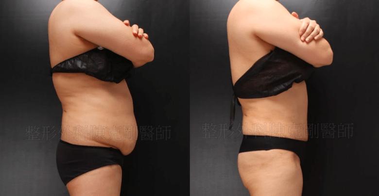 腹部拉皮側面比較