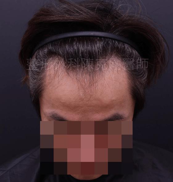 M型禿植髮正面術前