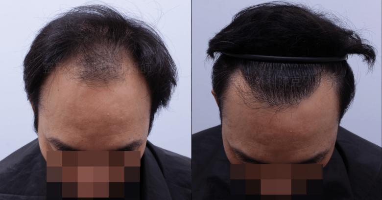 前額髮旋植髮低頭比較