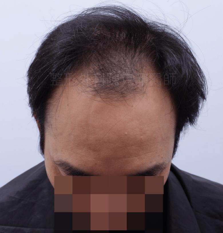 前額髮旋植髮低頭術前