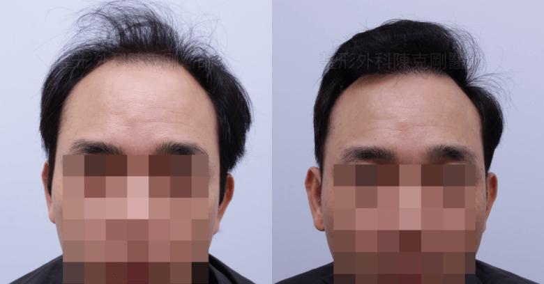 前額髮旋植髮正面術前比較