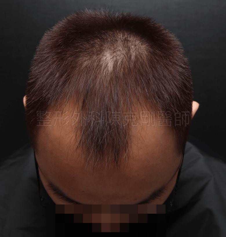前額M型植髮術前低頭