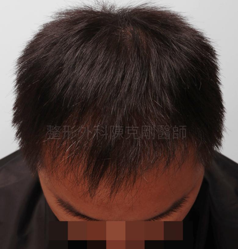 前額M型植髮術後六個月