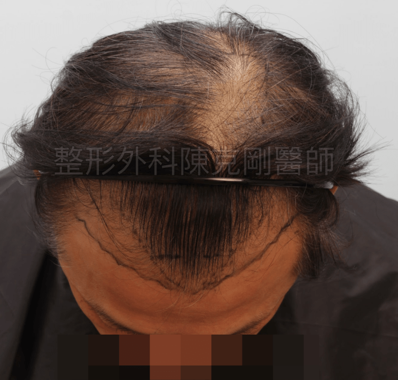 植髮術前規劃 落髮期
