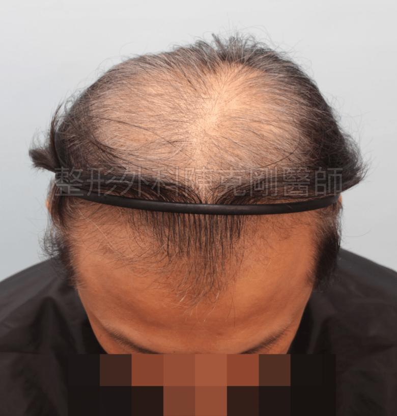 植髮術後三個月 落髮期