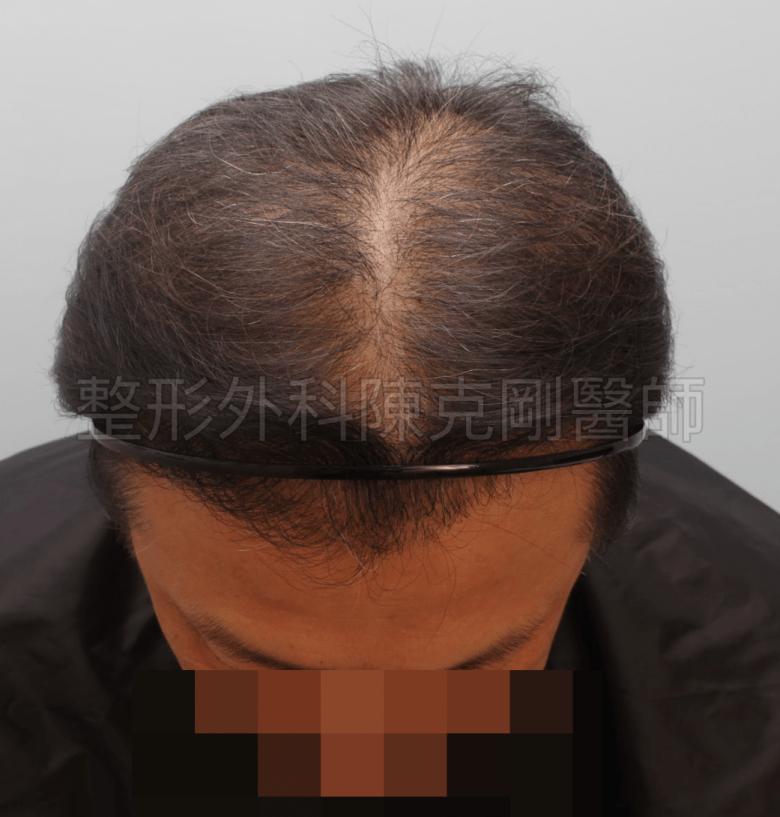 植髮術後六個月 落髮期