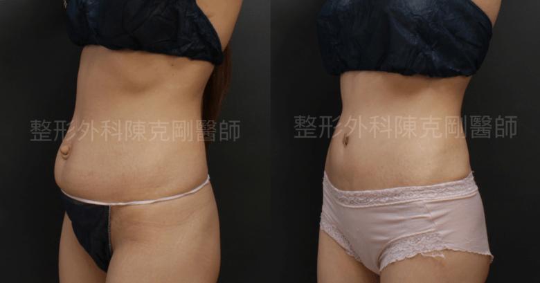 臍疝氣腹部拉皮右側比較