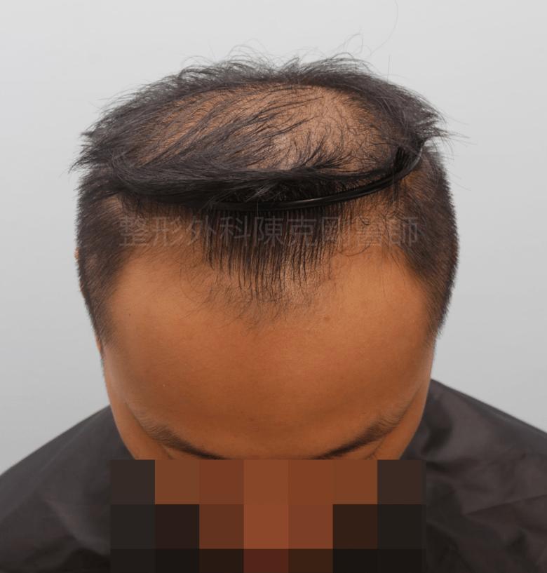 植髮合併生髮水髮線術前