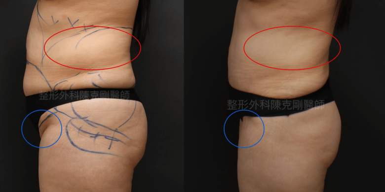 疤痕腹部拉皮術前側面比較重點