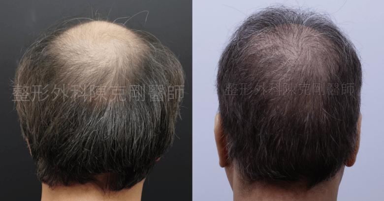 禿頭植髮後腦比較