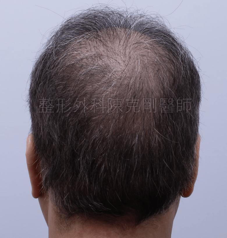 禿頭植髮後腦第二次術後