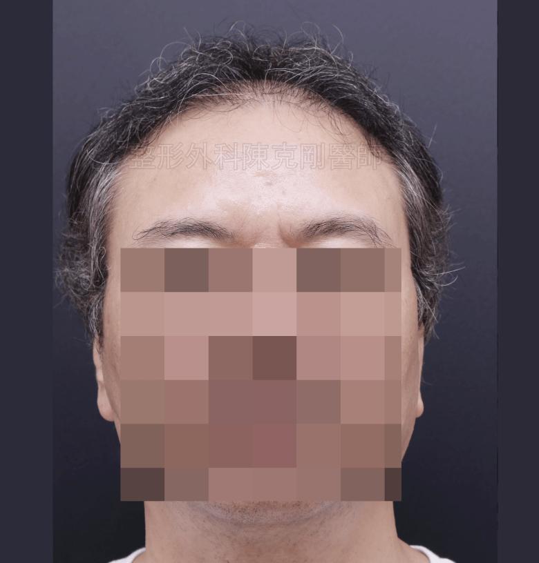 禿頭植髮第一次術後正面