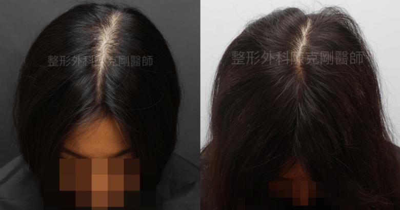 女性分線植髮正面比較